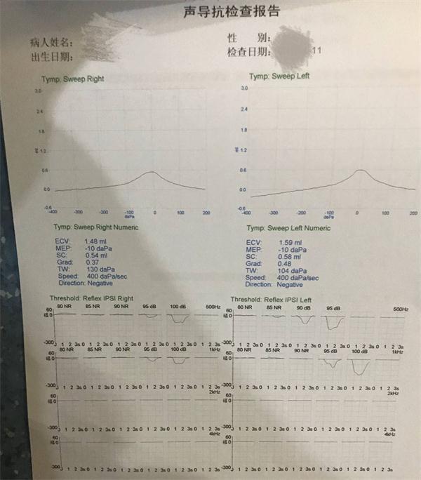 4职业体检项目噪声.jpg