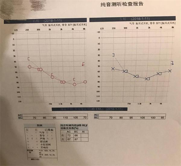 1.纯音测听检查报告.jpg