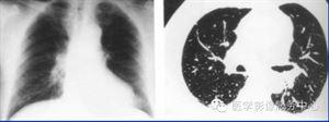尘肺CT小阴影.png