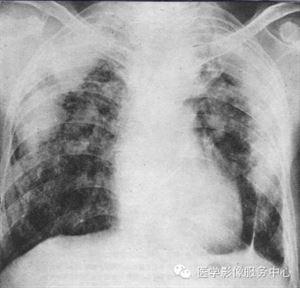 尘肺CT大阴影.png