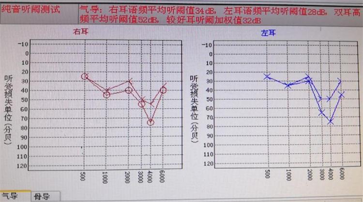 噪声职业体检听力结果.jpg