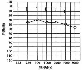 传导性听力损.jpg