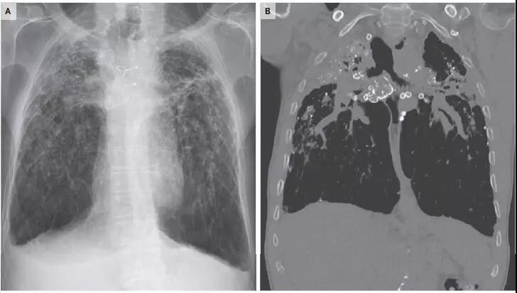 慢性矽肺纤维化胸片.jpg