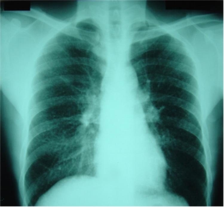 矽肺x线胸片.jpg