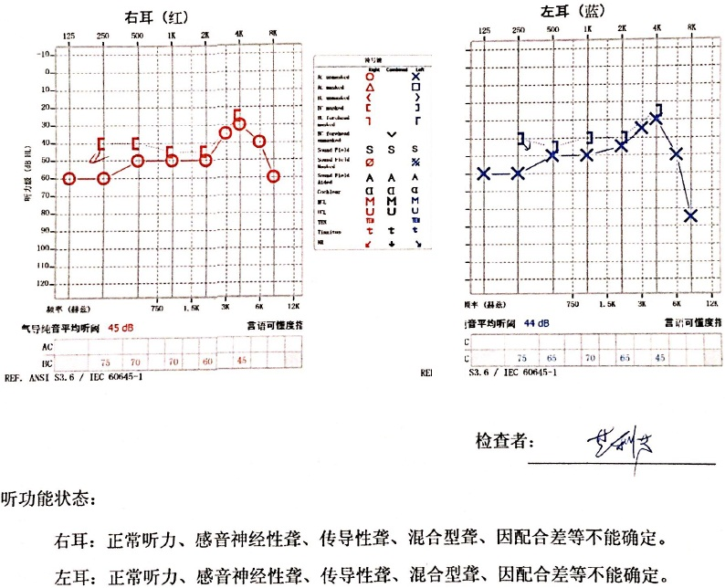 广州职业病防治院听力图.jpg